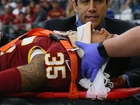 NFL accused of influencing concussion study